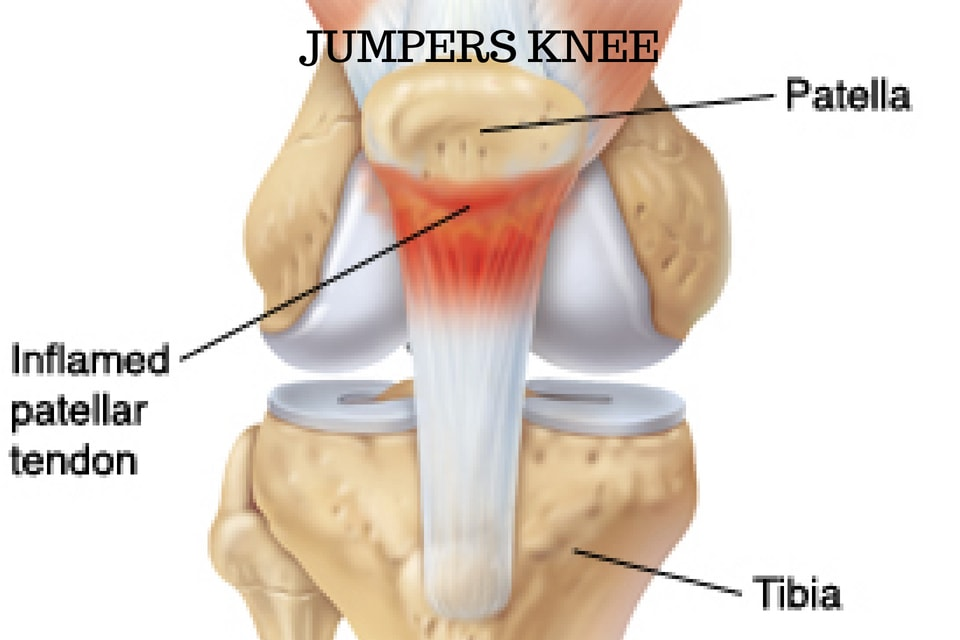 Wat is Jumpers Knee - Herkennen, Behandelen en Genezen